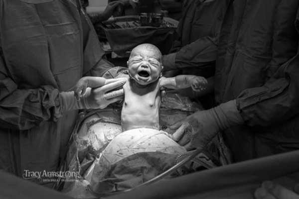 Labor_Delivery_And_Postpartum_Photos_That_Capture_The_Beauty_Of_Birth__12