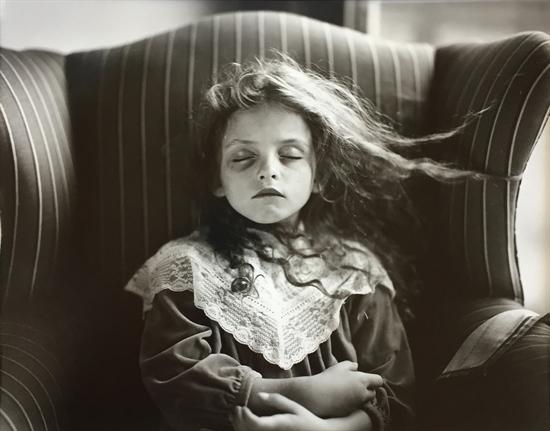 sally-mann-black-eye-photographs